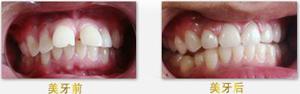 牙齿前突应该怎么办