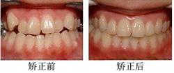 北京矫正儿童牙齿不齐多少钱