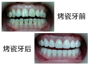 北京做烤瓷牙我们选择哪种材料好呢