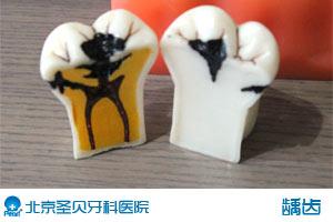 小孩如何预防龋齿