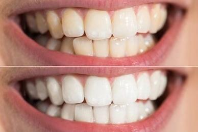 黄牙.jpg